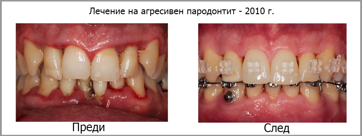 Лечение на агресивен пародонтит2010