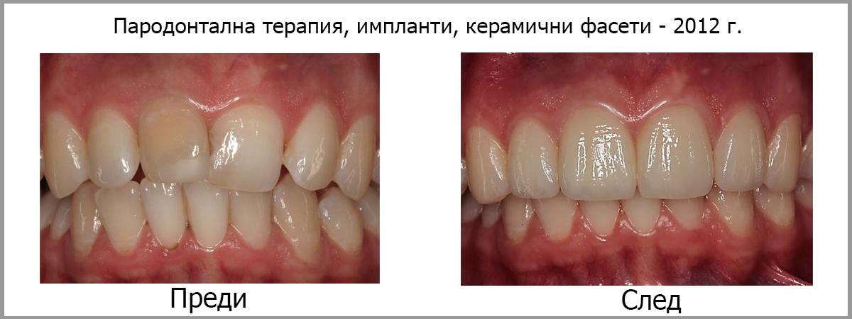 parodontalna terapia