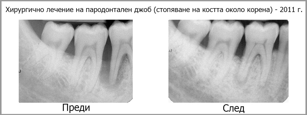 hirurgichno lechenie na parodontit