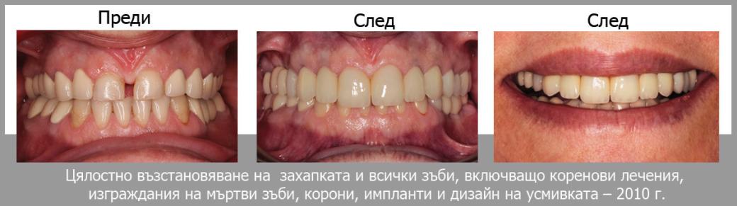 izlekuvan parodontit