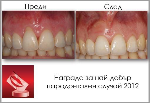 pokazvane na parodontalen sluchai