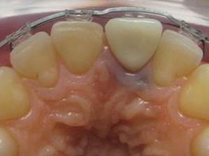 Fig.11 Новата временна корона , фиксирана към зъб 11
