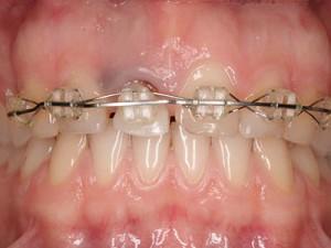 Fig.13 Краят на ортодонтското екструдиране след 6 месеца