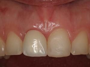 Fig.21 Стабилност на меките тъкани четири месеца след поставянето на импланта