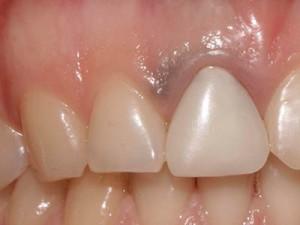 По-близък поглед на зъб 11 с гингивално преоцветяване и временно възстановяване