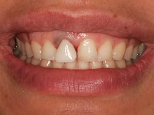Линията на усмивката в началото на лечението