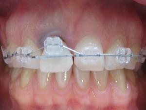 Fig.6 Началото на ортодонтския процес на изтегляне